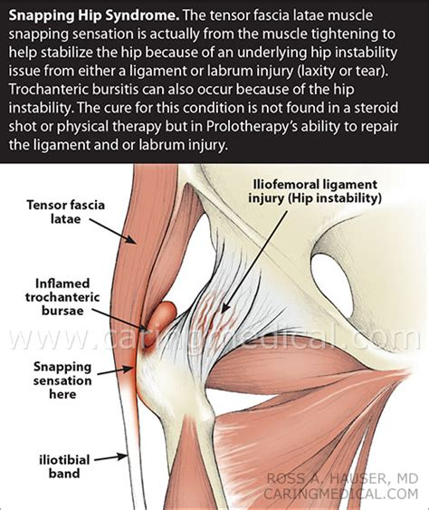 Prolotherapy for Snapping Hip Syndrome   Prolotherapy