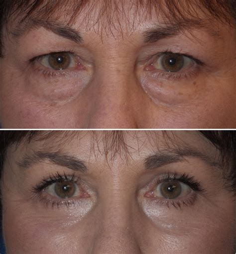 Cosmetic Eyelid Surgery: Small Procedure with Big Results