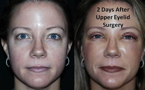 Before & After Upper Eyelid Surgery Pictures  Gainesville