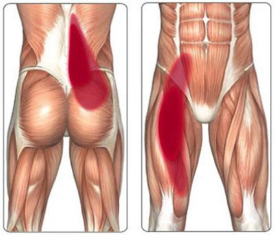 Hip Injuries Iliopsoas tendinitis pain in the hip and groin