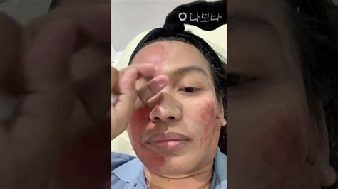Subcision for acne scars with doc weng - YouTube