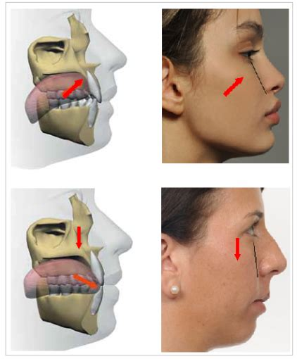 How To Fix Your Recessed Maxilla With Mewing - Lookspill