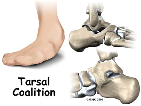Central Orthopedic GroupTarsal Coalition | Central