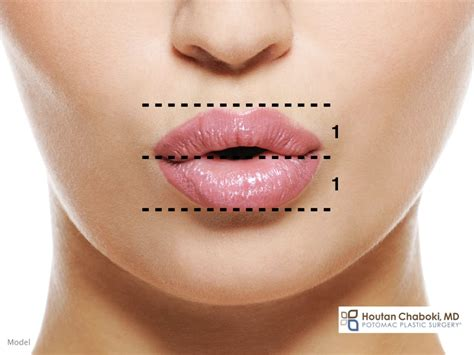 The Ideal Lip Shape in Plastic Surgery