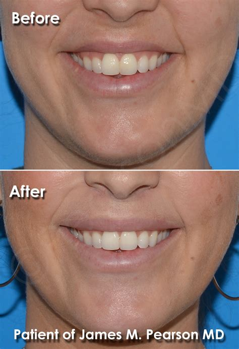 Lip Lift Photos - Before & After - Dr